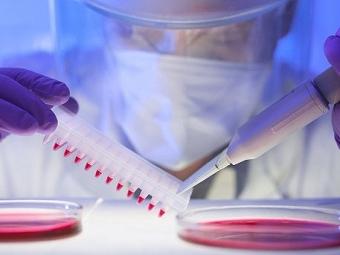 ВРоссии начались испытания вакцины отвируса Эбола наприматах