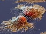 Получены уникальные снимки раковых клеток под микроскопом— Ученые