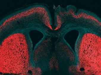 Ученые обнаружили ген «уникальности мозга»