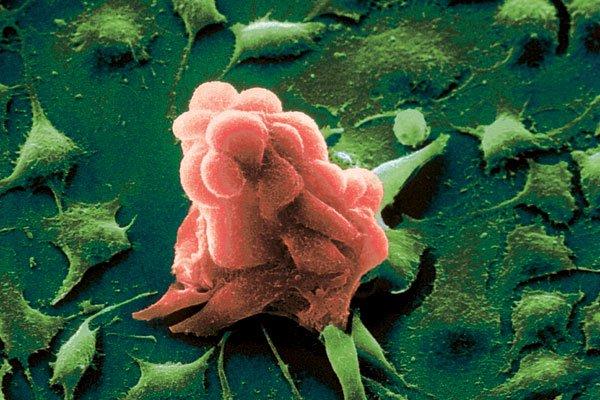Пресекать мутацию здоровых клеток враковые научились ученые