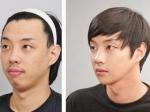 В Южной Корее ограничили рекламу пластической хирургии