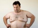 Липосакция новым методом украсит мужскую грудь