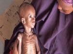 В Сомали дети гибнут от голода
