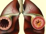 Врачи начнут заражать людей астмой
