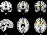 Ученые впервые определили воздействие любви намозг