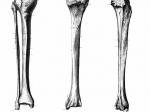 Разработан аналог костной ткани, заживляющий переломы итрещины— Ученые