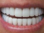 Ученые выявили зависимость памяти отколичества зубов