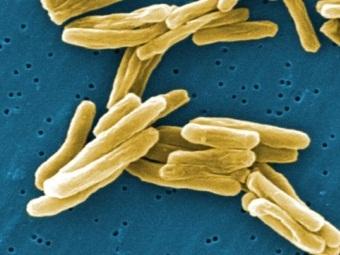 Врачи предупреждают о возвращении туберкулеза в Европу
