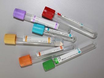 Преимущества вакуумных пробирок для сбора крови