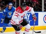 Хоккеист молодежной сборной Канады сломал ногу